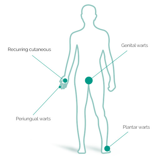 types of warts