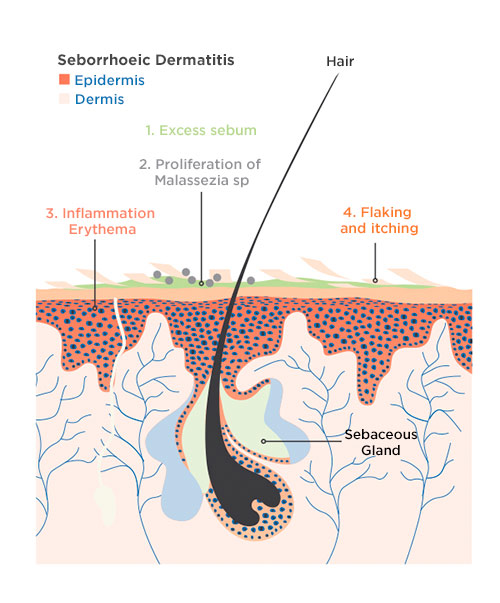 dandruff: advices and shampoos to fight it effectively - isdin  isdin