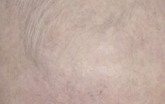 Eryfotona AK-NMSC 1 año tratamiento