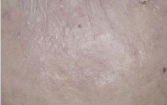 Eryfotona AK-NMSC Tratamiento
