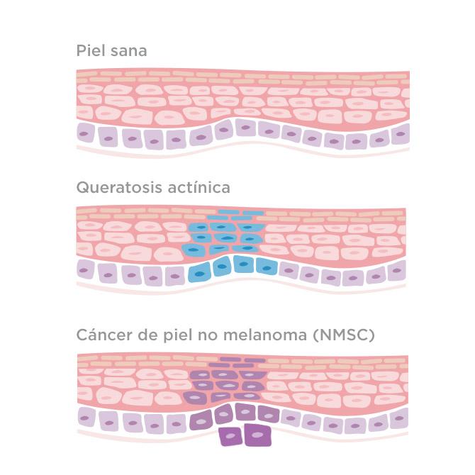 queratosis actínica cancer de piel