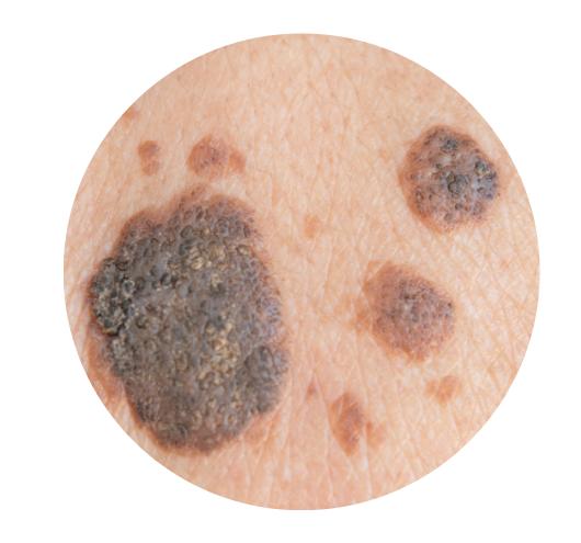 melanoma que es