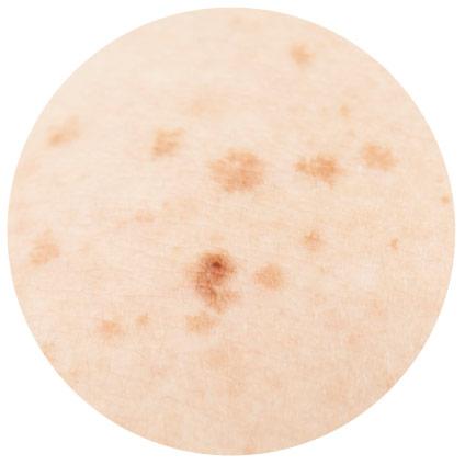 manchas en la piel lentigos