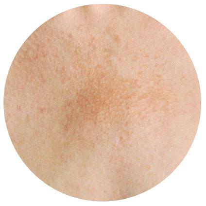 manchas en la piel melasma