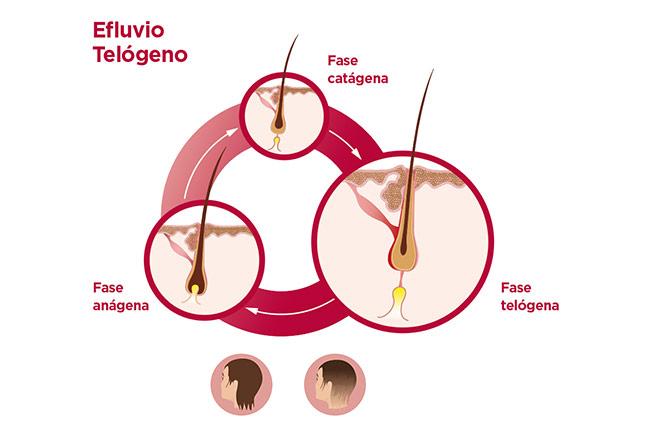 Efluvio telógeno caída del cabello