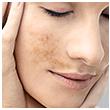 Alterações pigmentares